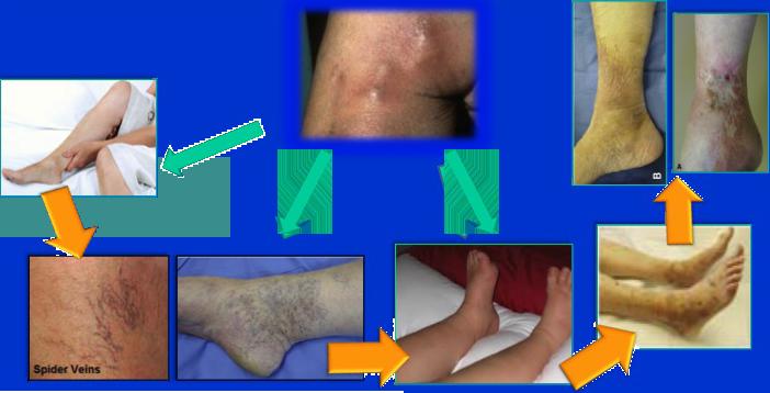 prevenzione-complicanze-insufficienza-venosa-slide53