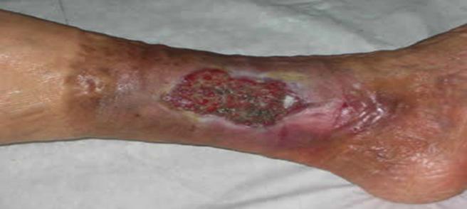 prevenzione-complicanze-insufficienza-venosa-slide58